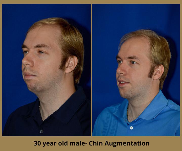 chin-augment-4