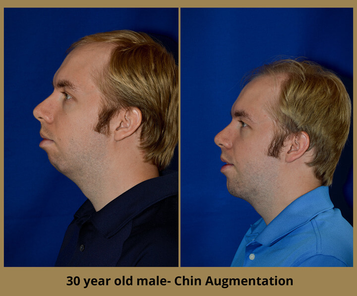 chin-augment-5
