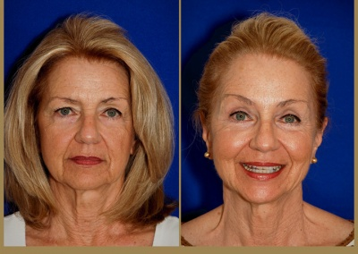 66 year old female - Brow Lift, Upper and Lower Blepharoplasty