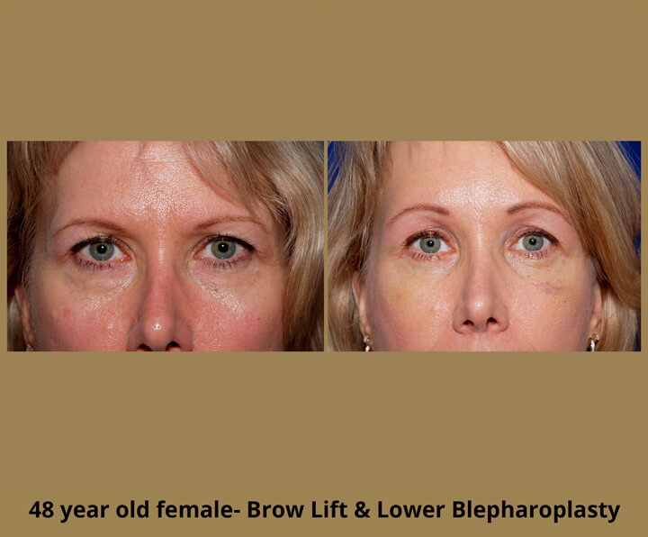 48 year old female - Brow Lift and Lower Blepharoplasty