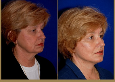 61 year old female - Face Lift
