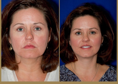 48 year old female - Face Lift and Lower Blepharoplasty