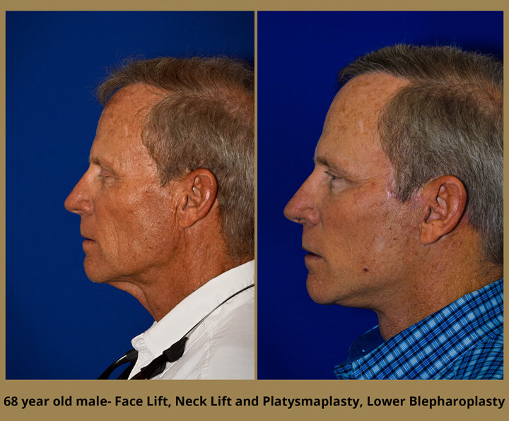 68 year old male - Face Lift, Neck Lift, Platsmaplasty, and Lower Blepharoplasty