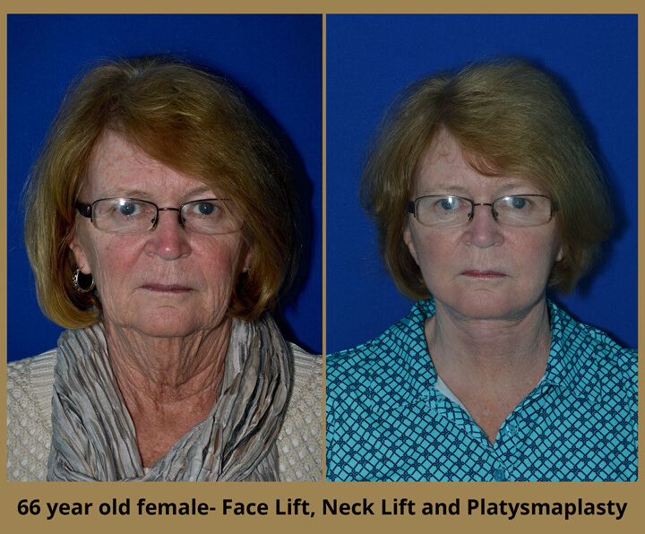 face-neck-1