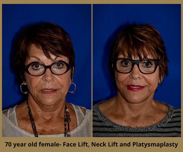 face-neck-10