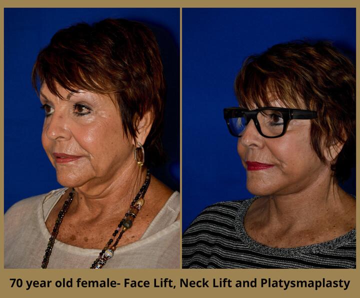 face-neck-11