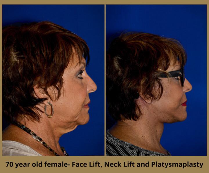 face-neck-12