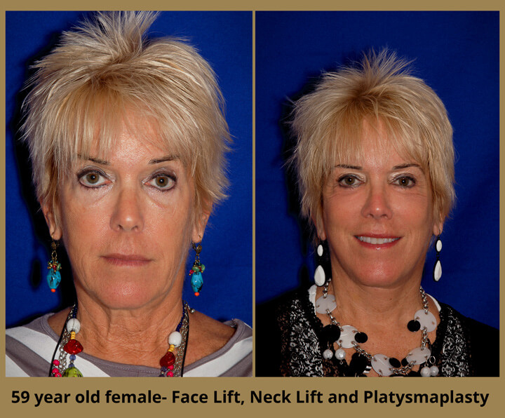 face-neck-13