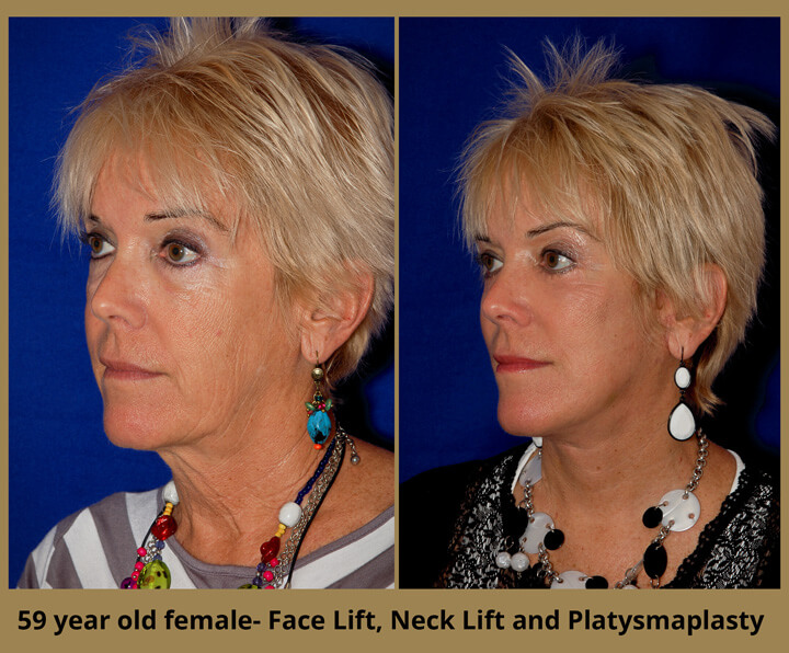 face-neck-14
