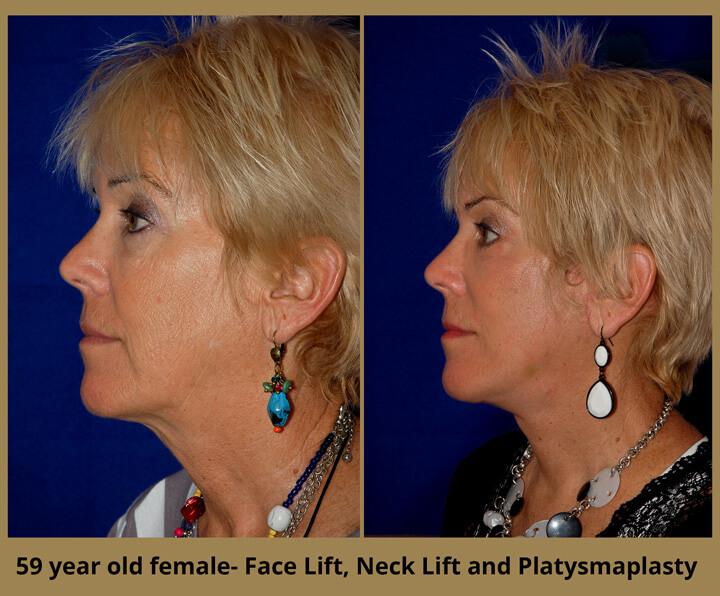 face-neck-15