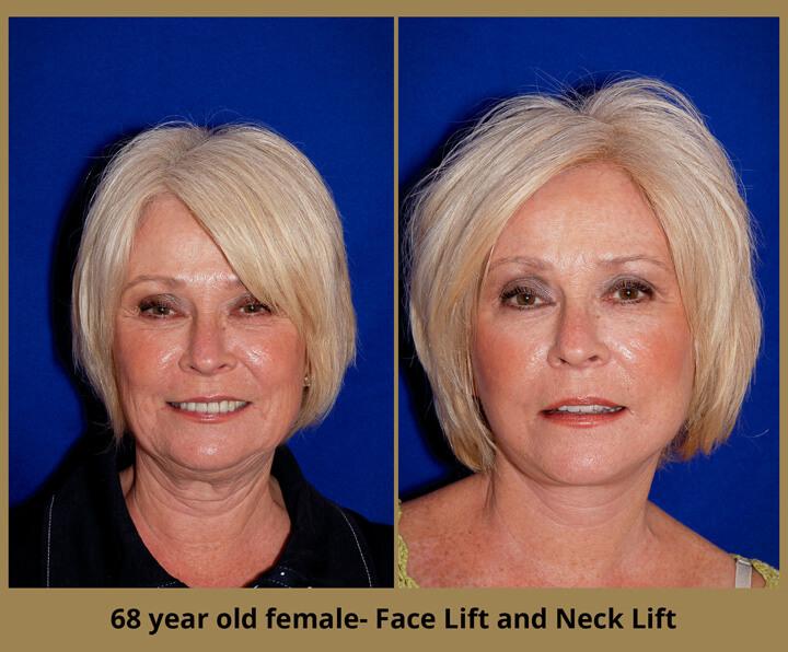 face-neck-16