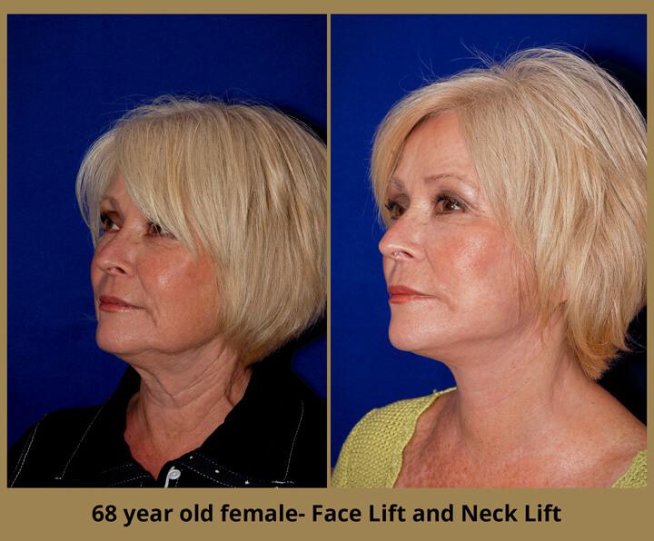 face-neck-17