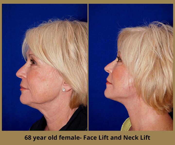 face-neck-18