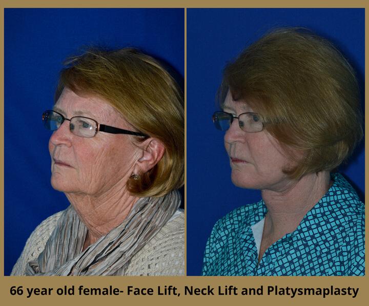 face-neck-2