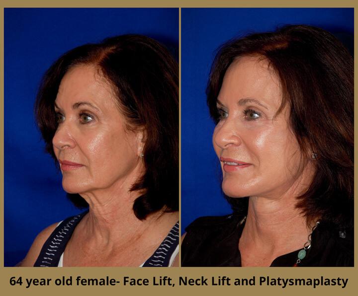 face-neck-20