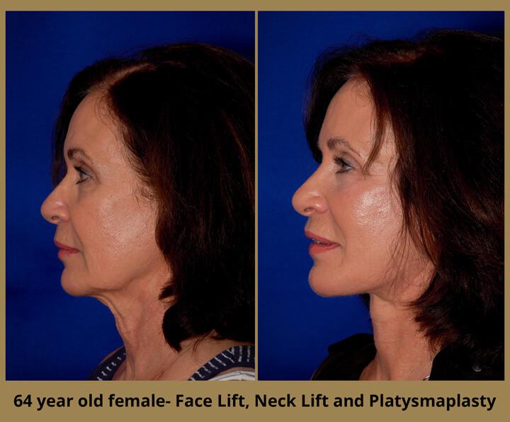 face-neck-21