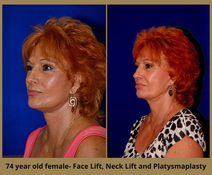 face-neck-22