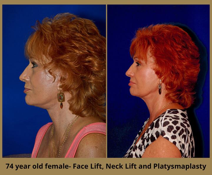 face-neck-23