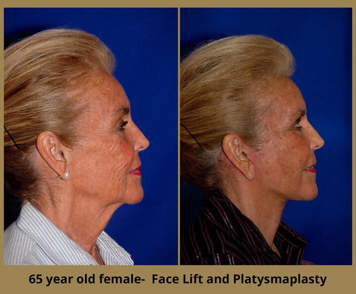 face-neck-26