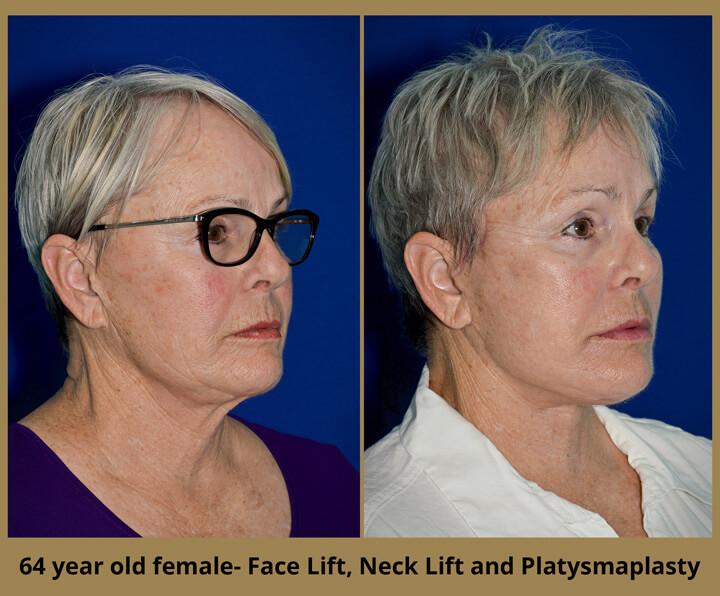 face-neck-28