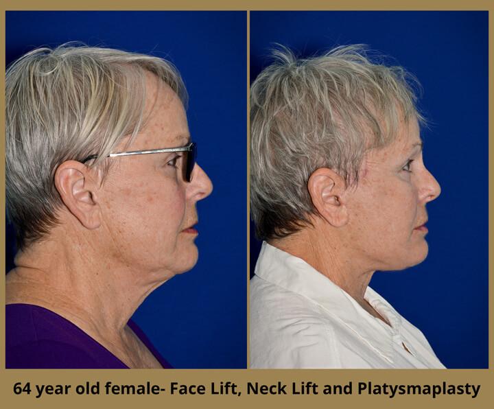 face-neck-29