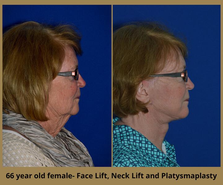 face-neck-3