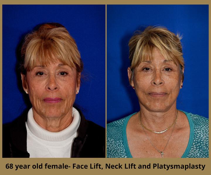 face-neck-30