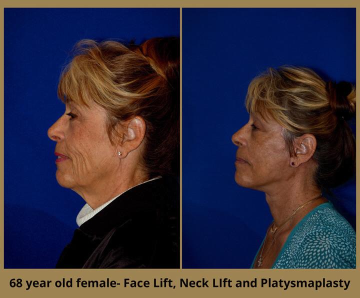 face-neck-31