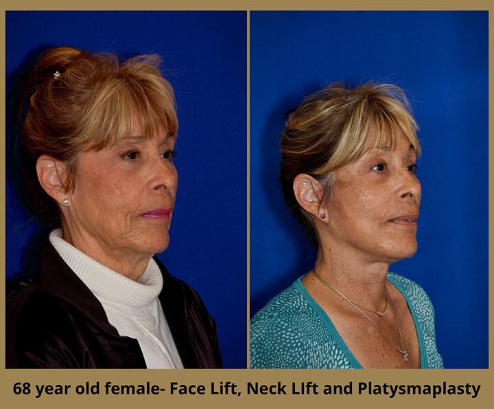 face-neck-32