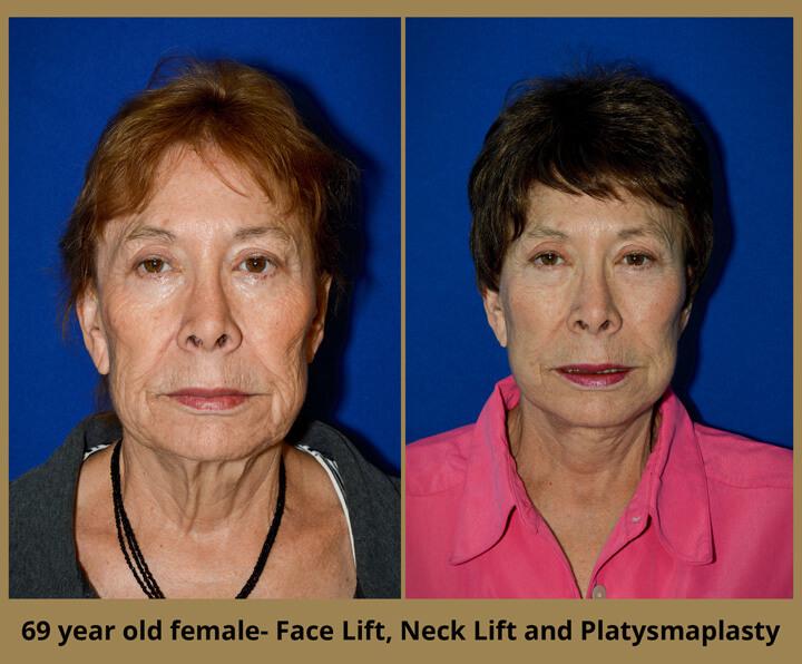 face-neck-4