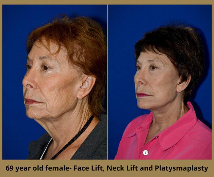 face-neck-5