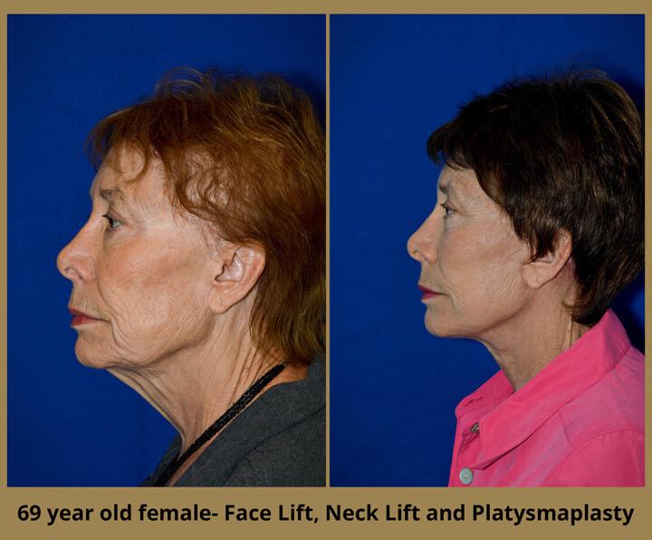 face-neck-6
