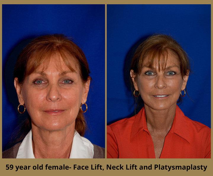 face-neck-7