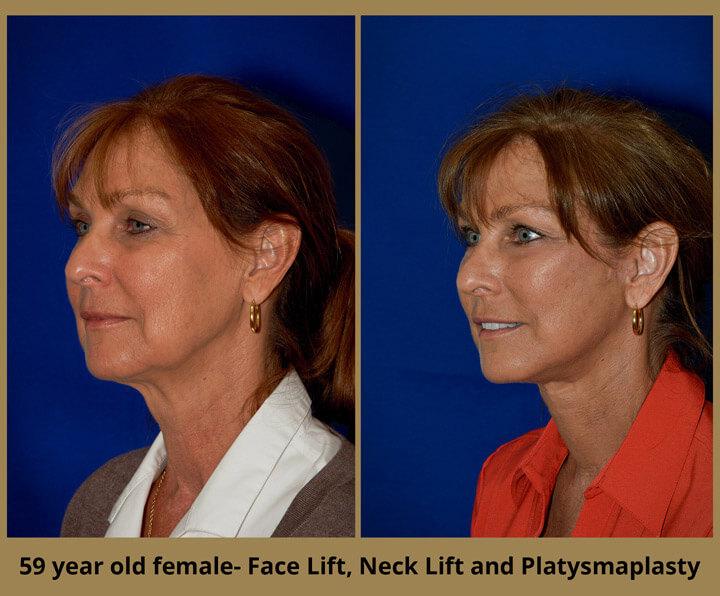 face-neck-8