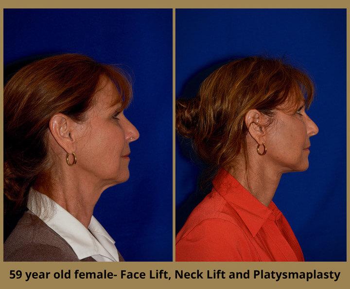 face-neck-9
