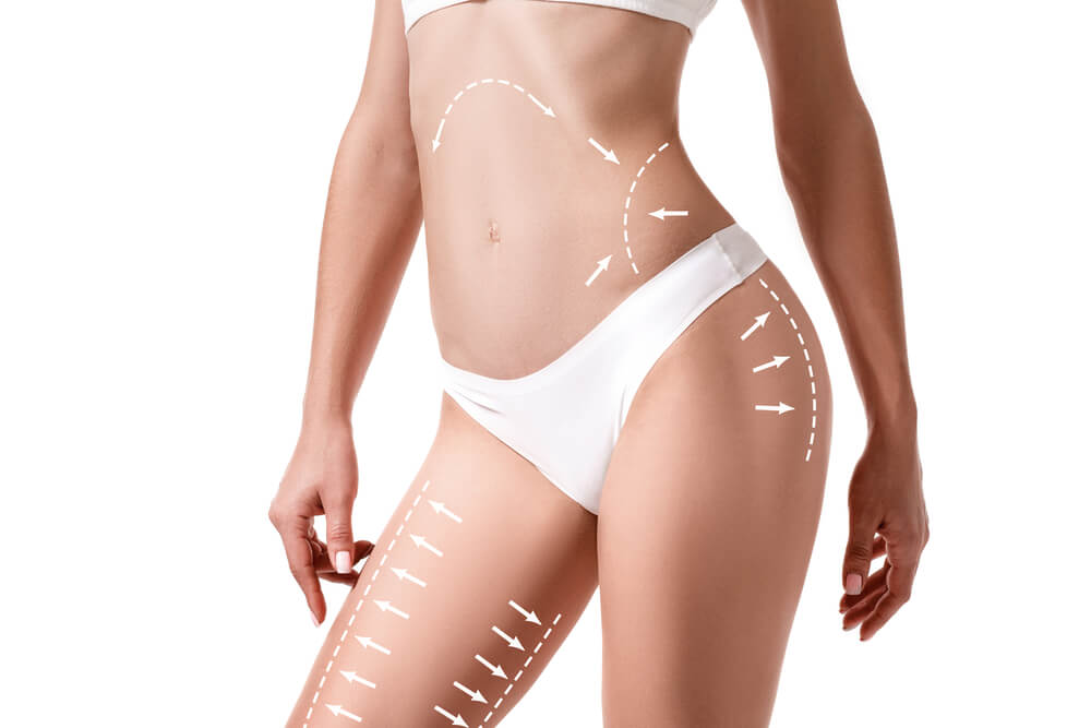 Top 5 Most Suitable Body Parts For Liposuction