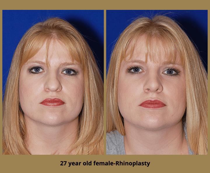 27 year old female-Rhinoplasty