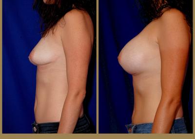 28 year old female-Breast Augmentation 400cc