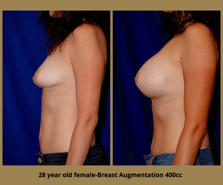 Breast Before & After Breast Augmentation | 28 Female 400cc