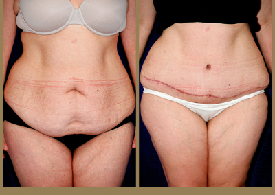 31 year old female-Abdominoplasty