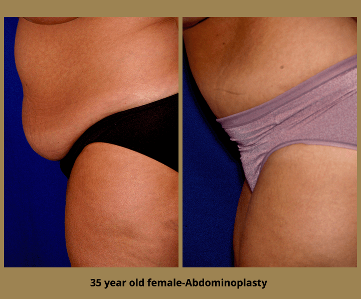 35 year old female-Abdominoplasty