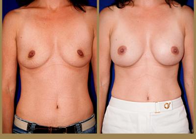 41 year old female-Breast Augmentation 350cc