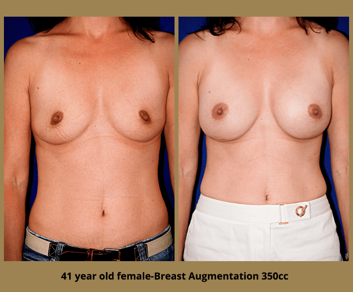 Breast Before & After breast augmentation | 41 female 350 cc