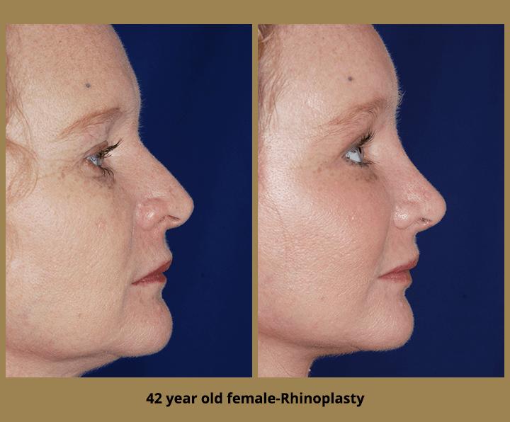 42 year old female-Rhinoplasty