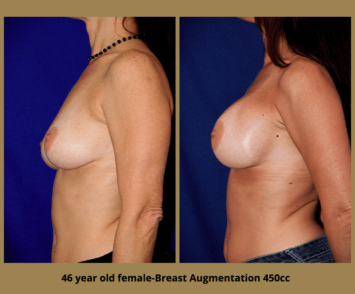 46 Year Old Female-Before & After Breast Augmentation 450cc