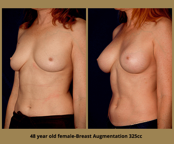 Breast Augmentation - Before and After Photo - 48 female
