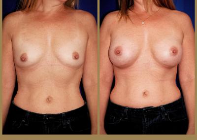 48 year old female-Breast Augmentation 325cc