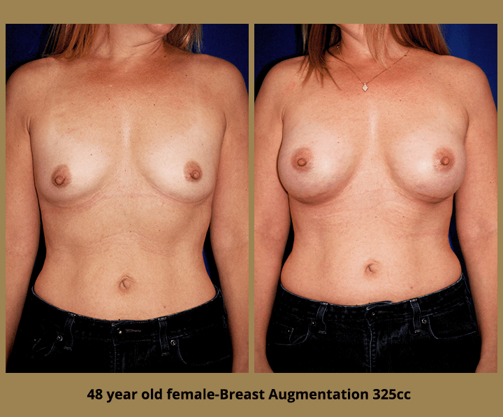 Before & After Breast Augmentation | Tampa, FL Dr. Egozi