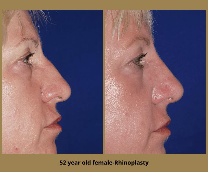 52 year old female-Rhinoplasty