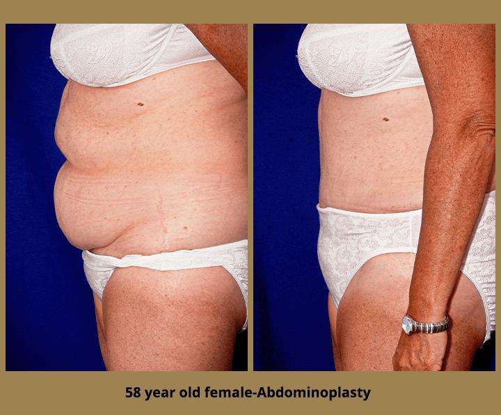 58 year old female-Abdominoplasty